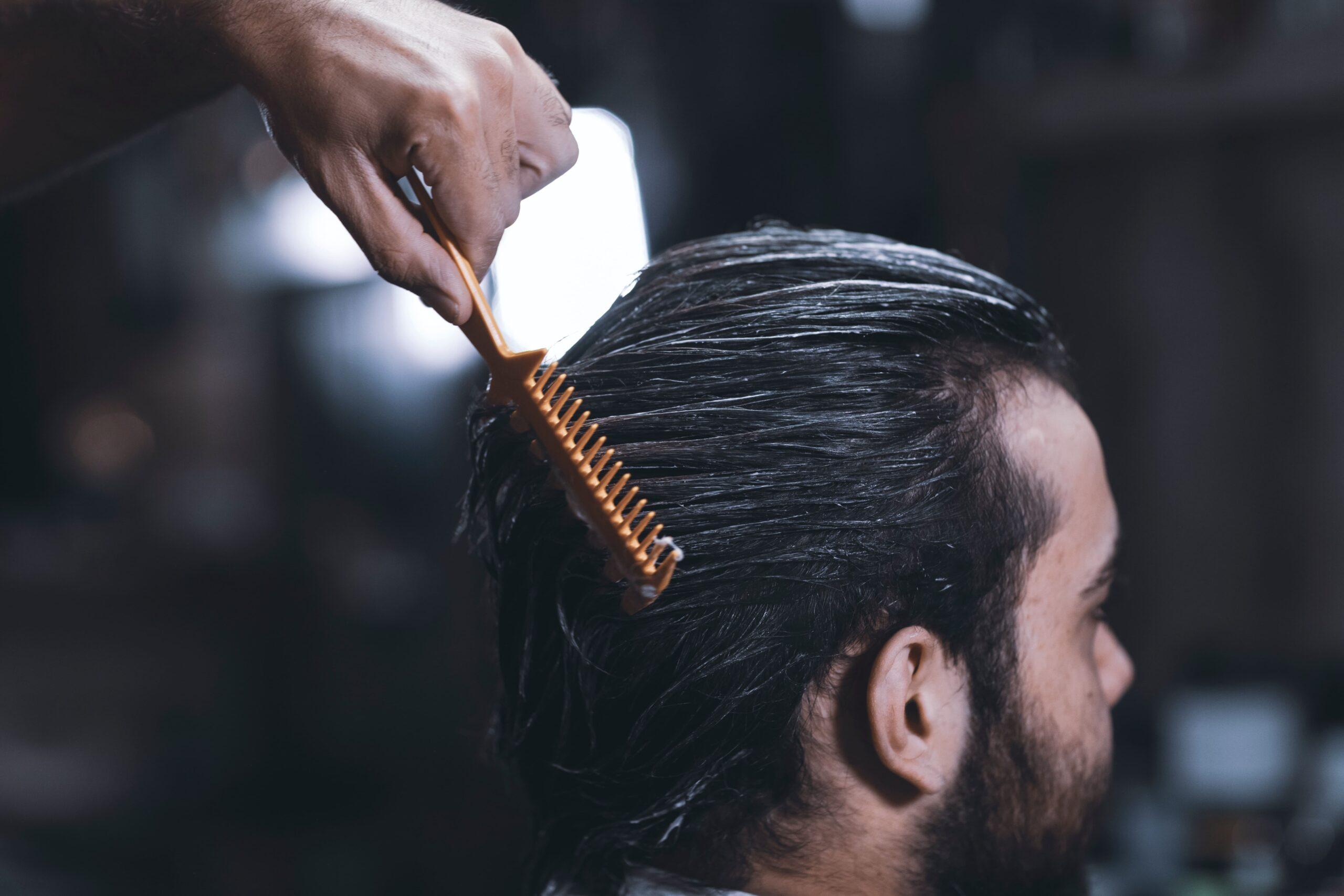 Greffe de cheveux chez les hommes